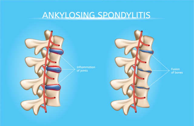 Rock Musicians Bring New Awareness to Ankylosing Spondylitis