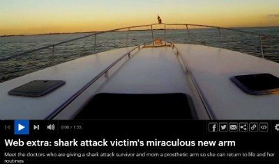 Video: Shark Attack Victim Gets New Arm