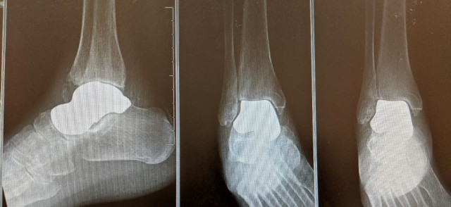 Talus Foot and Ankle X-ray Image