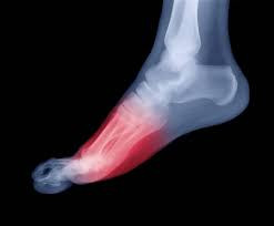 Common Foot Conditions Treated with Orthotics
