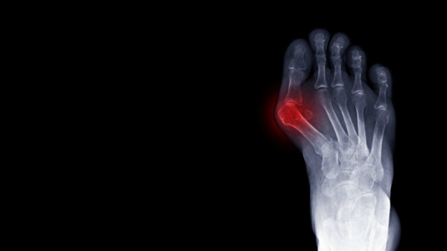 How to Know if You Might Have Bunions and When to See a Doctor