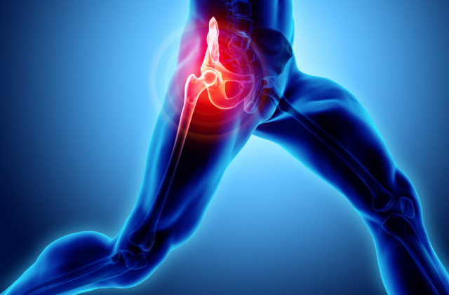 OrthoCarolina Hip and Knee Surgeons Establish Periprosthetic Joint Infection Center