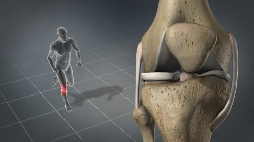 "patellofemoral pain syndrome (""PFPS""), or Runner's Knee"