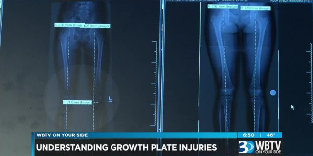 Helping parents spot growth plate fractures in kids