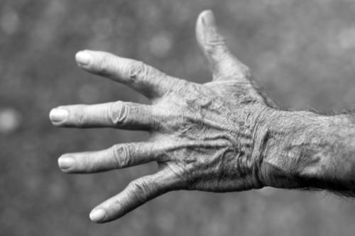 How To Treat Basilar Joint Thumb Arthritis Orthocarolina
