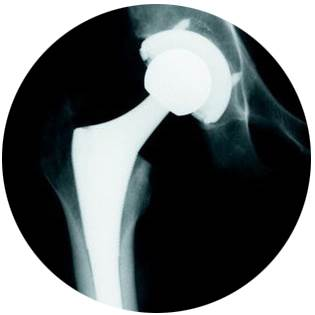 Hip replacement - X-ray